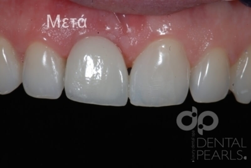 odontika emfyteymata before after dental pearls