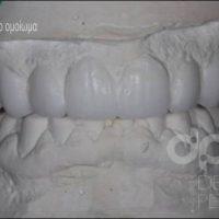 smile design dental pearls